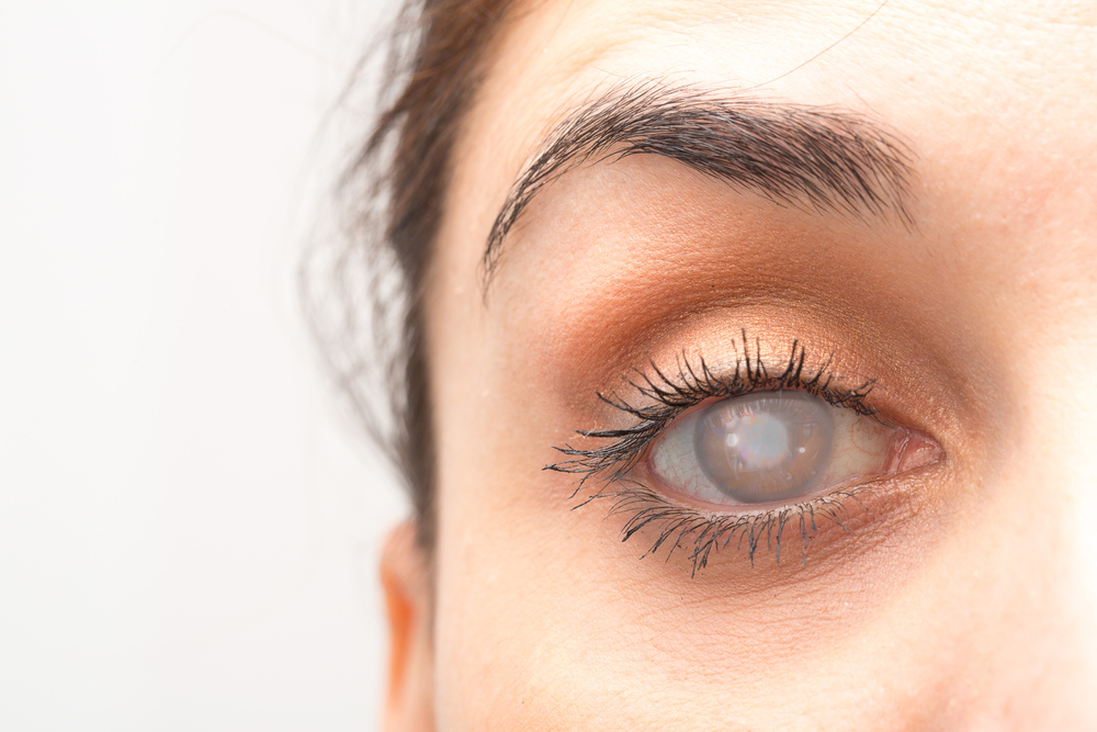 Berbahaya bagi mata yang berisiko terjadinya katarak