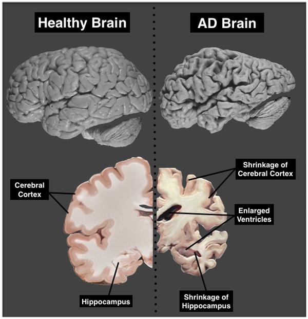 Perbandingan otak manusia yang normal dan otak manusia yang terkena penyakit Alzheimer.