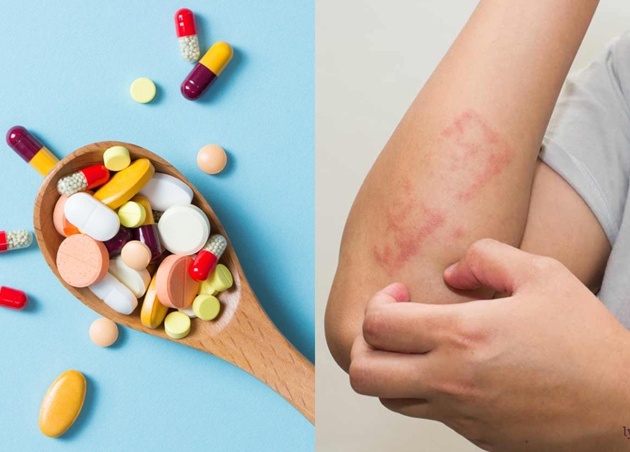 Gejala dan cara mengatasi alergi obat