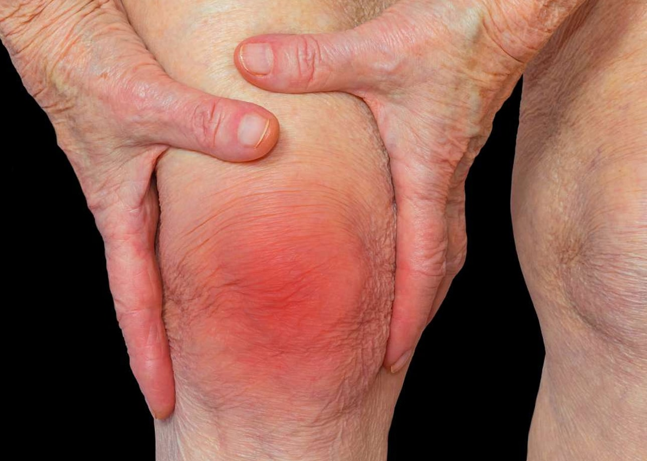 Cara mengatasi rematik pada lansia
